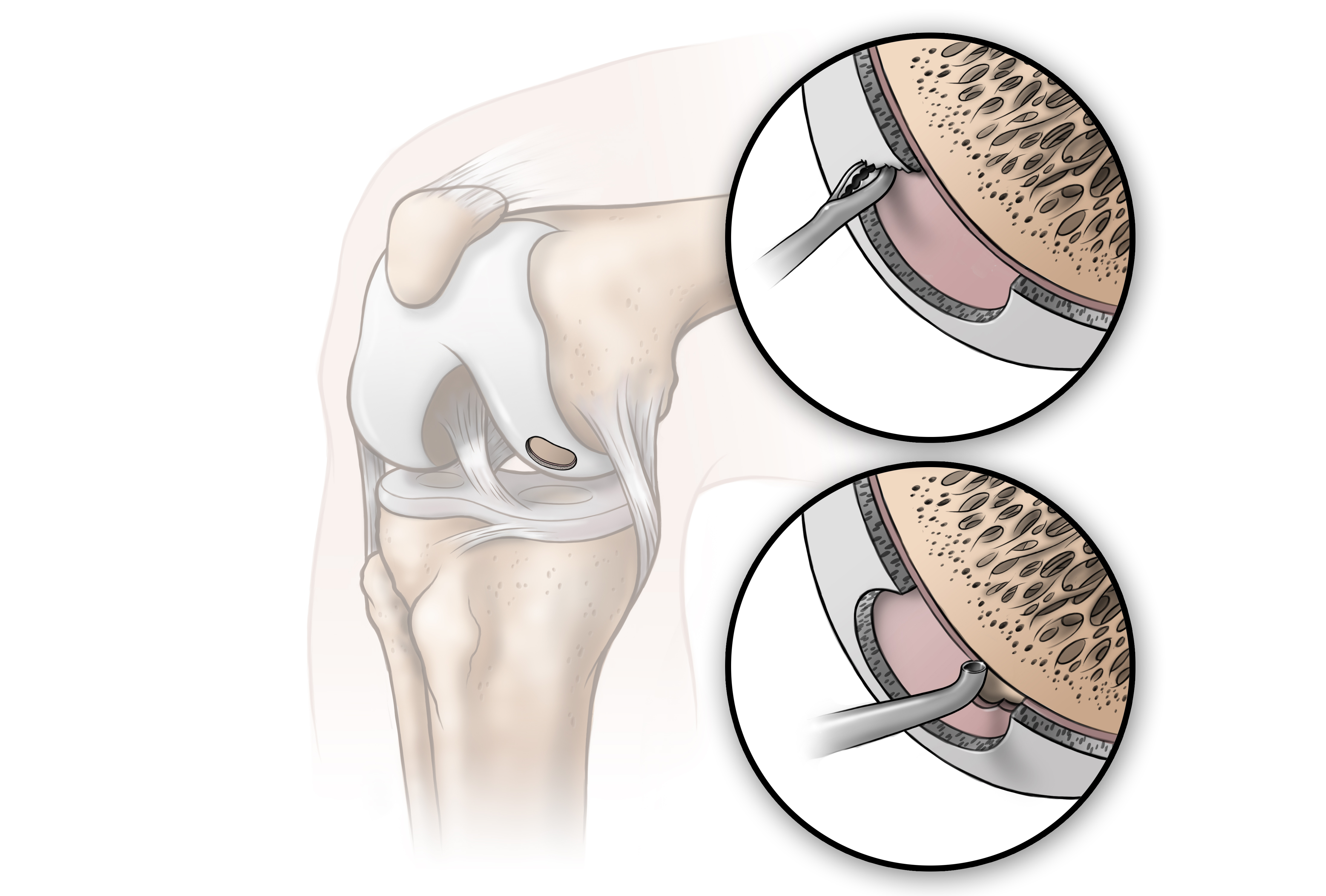 knee_procedure_13